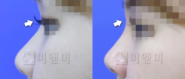 낮은콧대, 뭉툭한 코끝 코필러로 개선